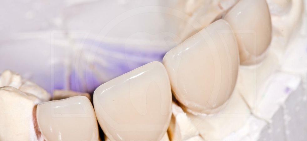 Сравнение видов зубных коронок
