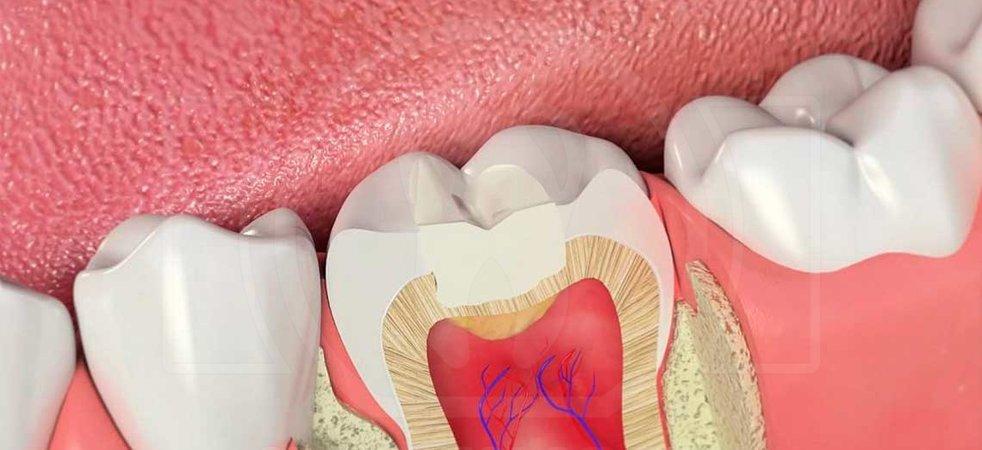 Временная пломба зуба