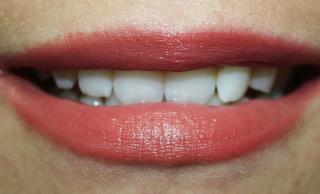 Какую роль выполняет щечный коридор в эстетике улыбки?