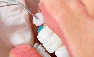 Люминиры на зубы. Реставрация зубов люминирами