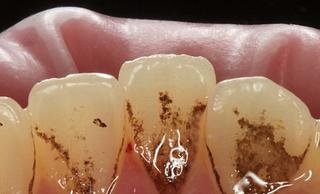 Налёт на зубах (зубной камень): виды и причины