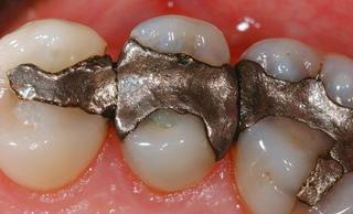 Пломба из амальгамы (стоматологическая амальгама)