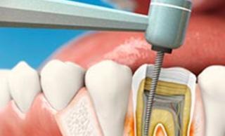 Лечение корневых каналов зуба (эндодонтия)