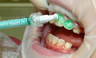 Лечение начального кариеса методом ICON