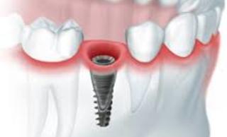 Одноэтапная имплантация зубов (с немедленной нагрузкой)