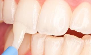 Ремотерапия (реминерализация эмали зубов)