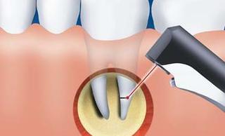 Резекция верхушки корня зуба (апикоэктомия)