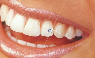 Украшения на зубы (скайсы)