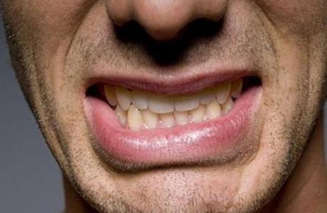 Бруксизм или скрежет зубами у взрослых и детей