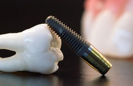 Экспресс имплантация с немедленной нагрузкой