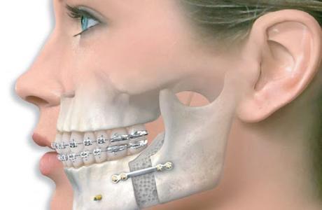 Компактостеотомия в области одного зуба (при ортодонтическом лечении)