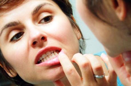 Периодонтит: основные симптомы и методы лечения