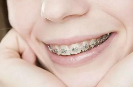 Всегда ли нужно ставить брекеты человеку с кривыми зубами?