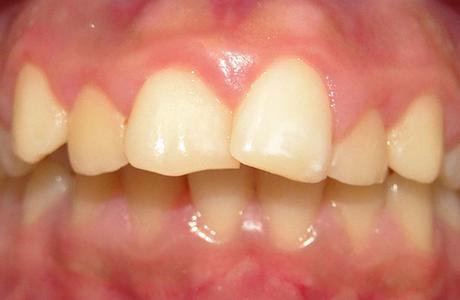 Зуб развернулся внутренней стороной к соседнему зубу при заболевании десен: что делать?
