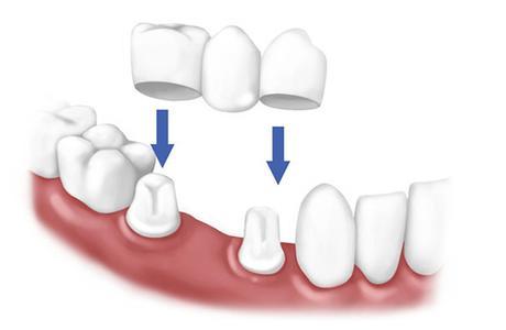 «Зубной мост» или что такое мостовидные зубные протезы?